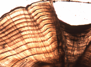 The otolith (ear bone) of a Murray Cod showing annual growth rings. Photo: Zoe Doubleday
